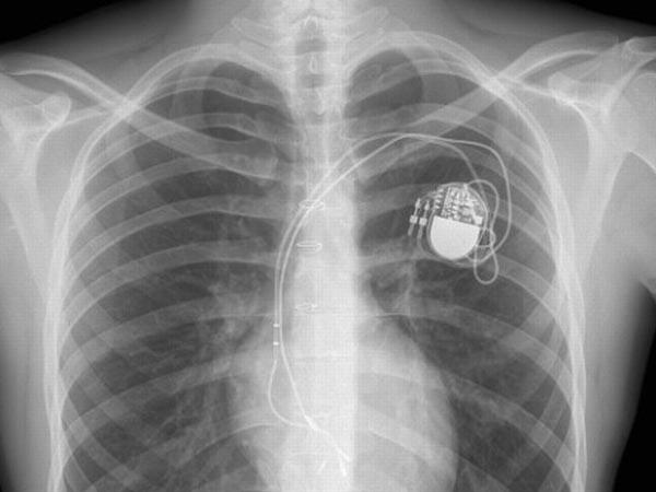 Эксперты обнаружили уязвимости в кардиостимуляторах