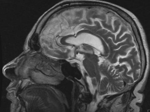 Сегодня нам делают МРТ головы — завтра софт идентифицирует нас по снимку