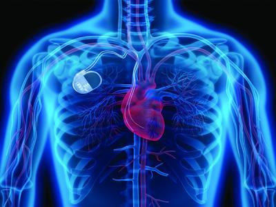 Взлом кардиостимуляторов может использоваться для шантажа